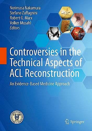 Portada del libro 9783662527405 Controversies in the Technical Aspects of ACL Reconstruction. An Evidence-Based Medicine Approach