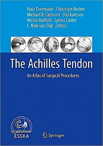 Portada del libro 9783662540732 The Achilles Tendon. An Atlas of Surgical Procedures