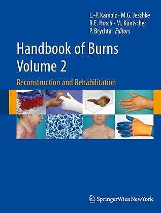 Portada del libro 9783709103142 Handbook of Burns, Vol. 2: Reconstruction and Rehabilitation
