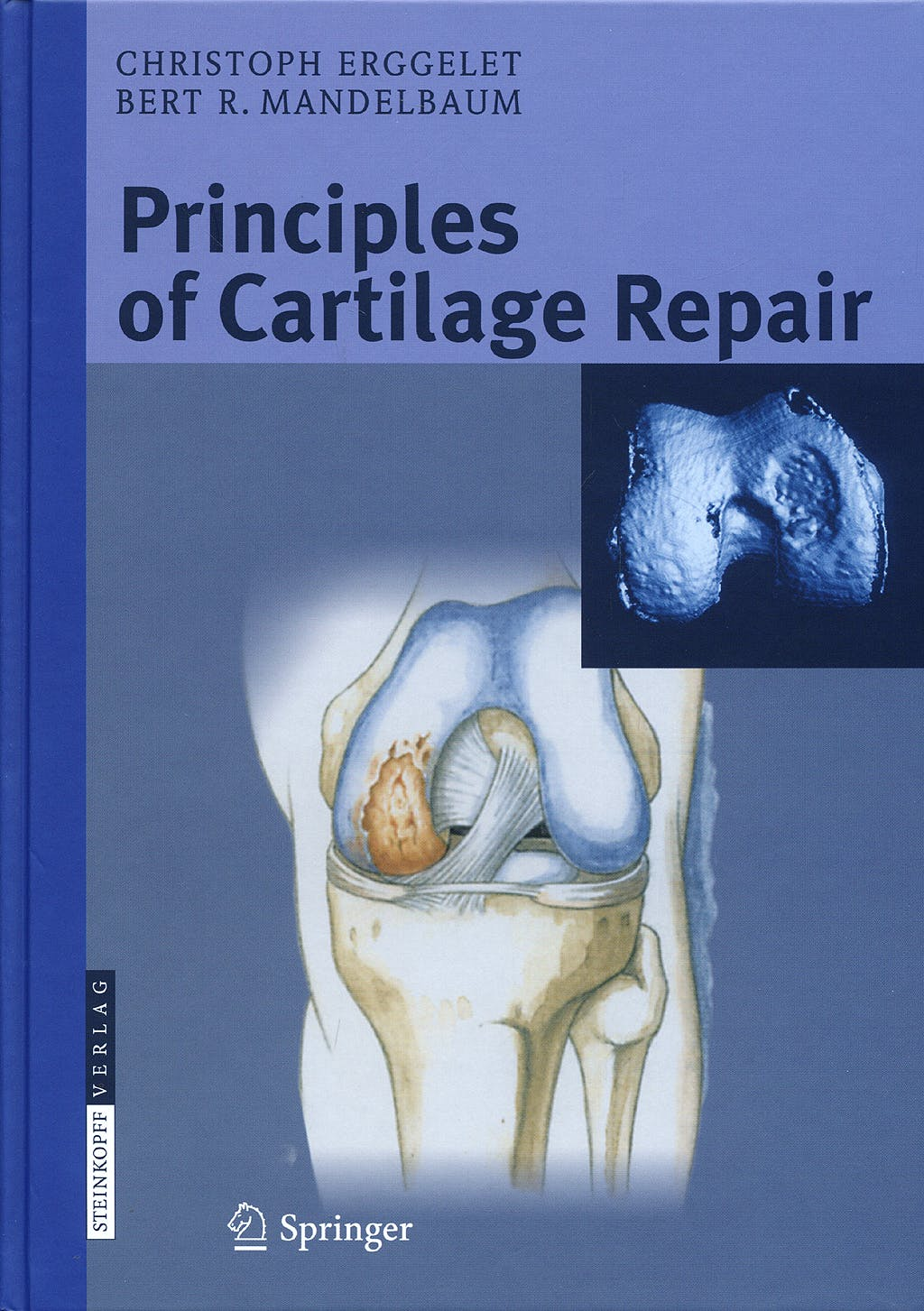 Portada del libro 9783798515901 Principles of Cartilage Repair