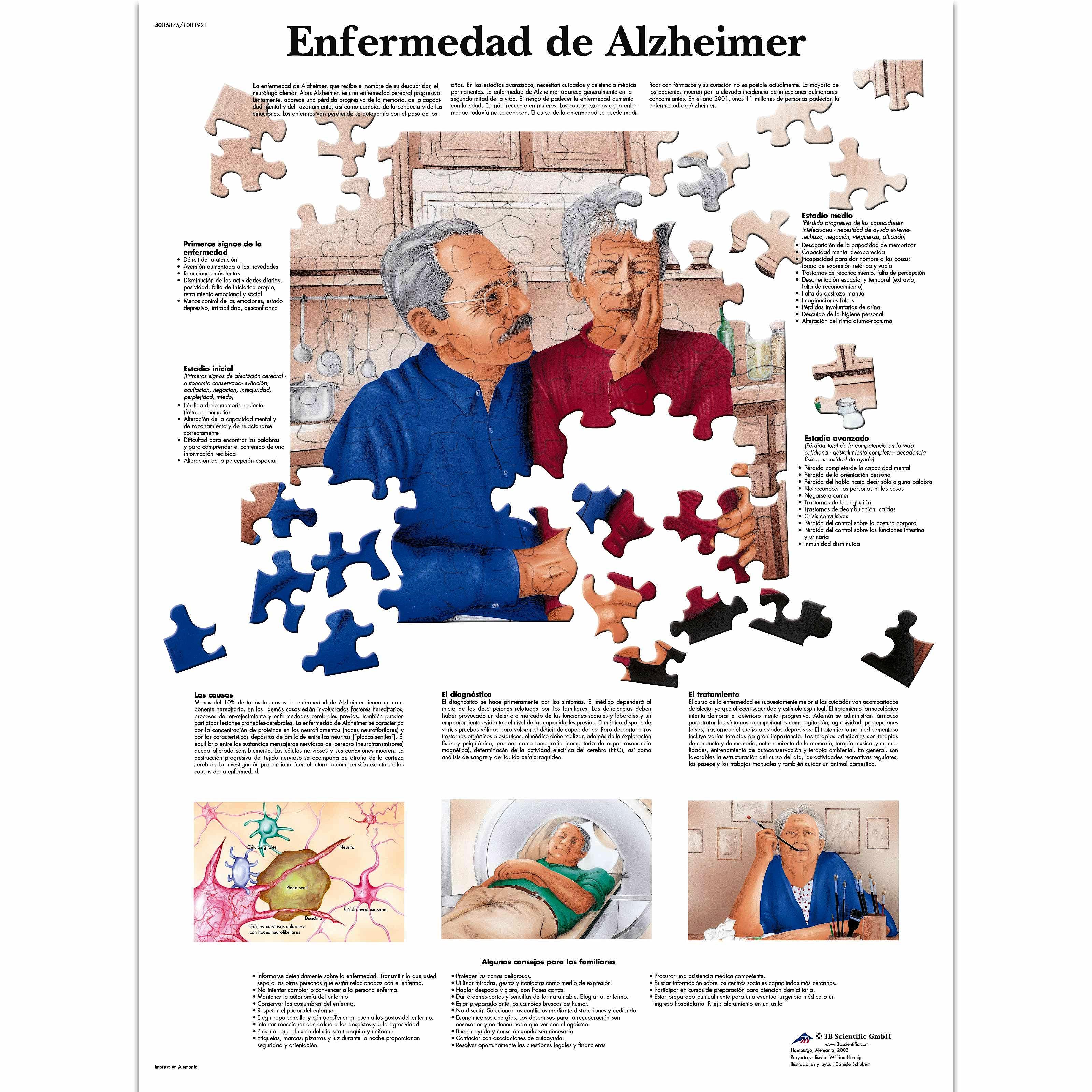 Lamina la Enfermedad de Alzheimer (formato 50 x 67 cm)