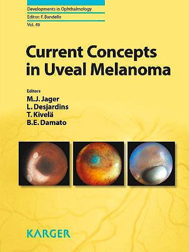 Portada del libro 9783805597906 Current Concepts in Uveal Melanoma