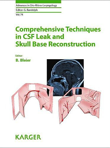 Portada del libro 9783805599528 Comprehensive Techniques in Csf Leak and Skull Base Reconstruction (Advances in Oto-Rhino-Laryngology, Vol. 74)