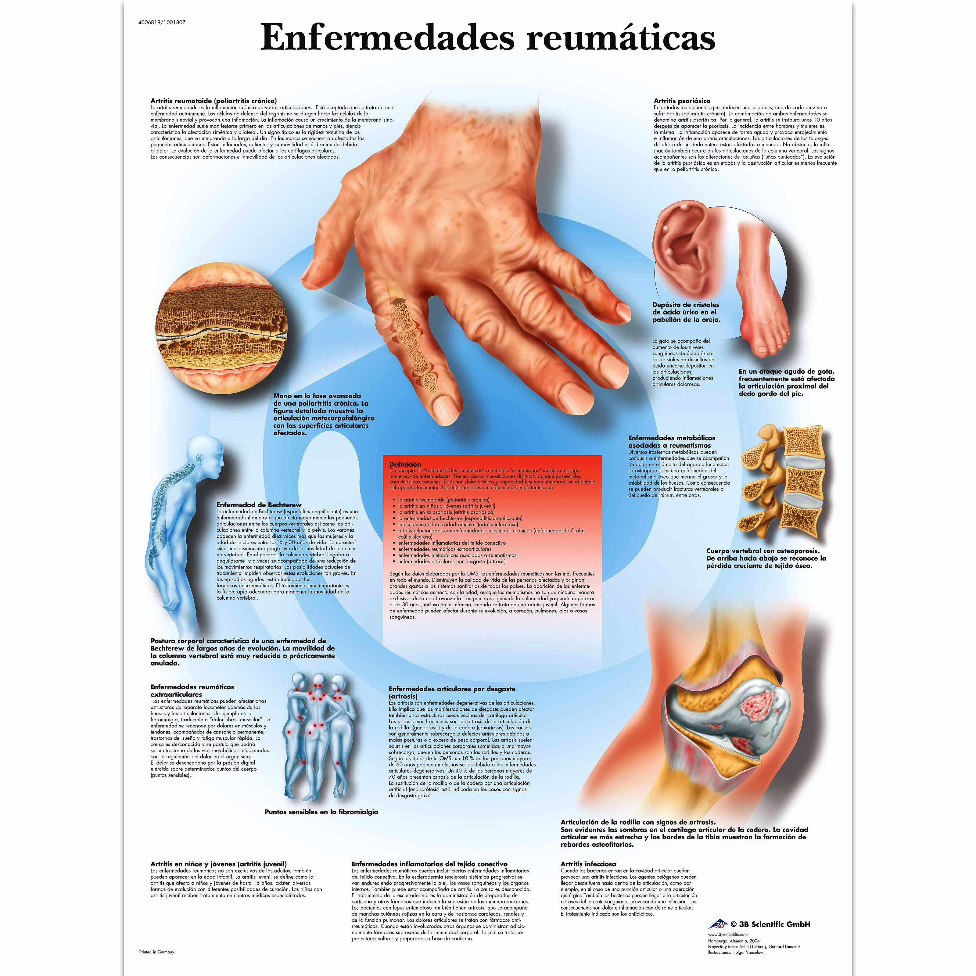 Lamina Enfermedades Reumaticas (formato 50 x 67 cm)
