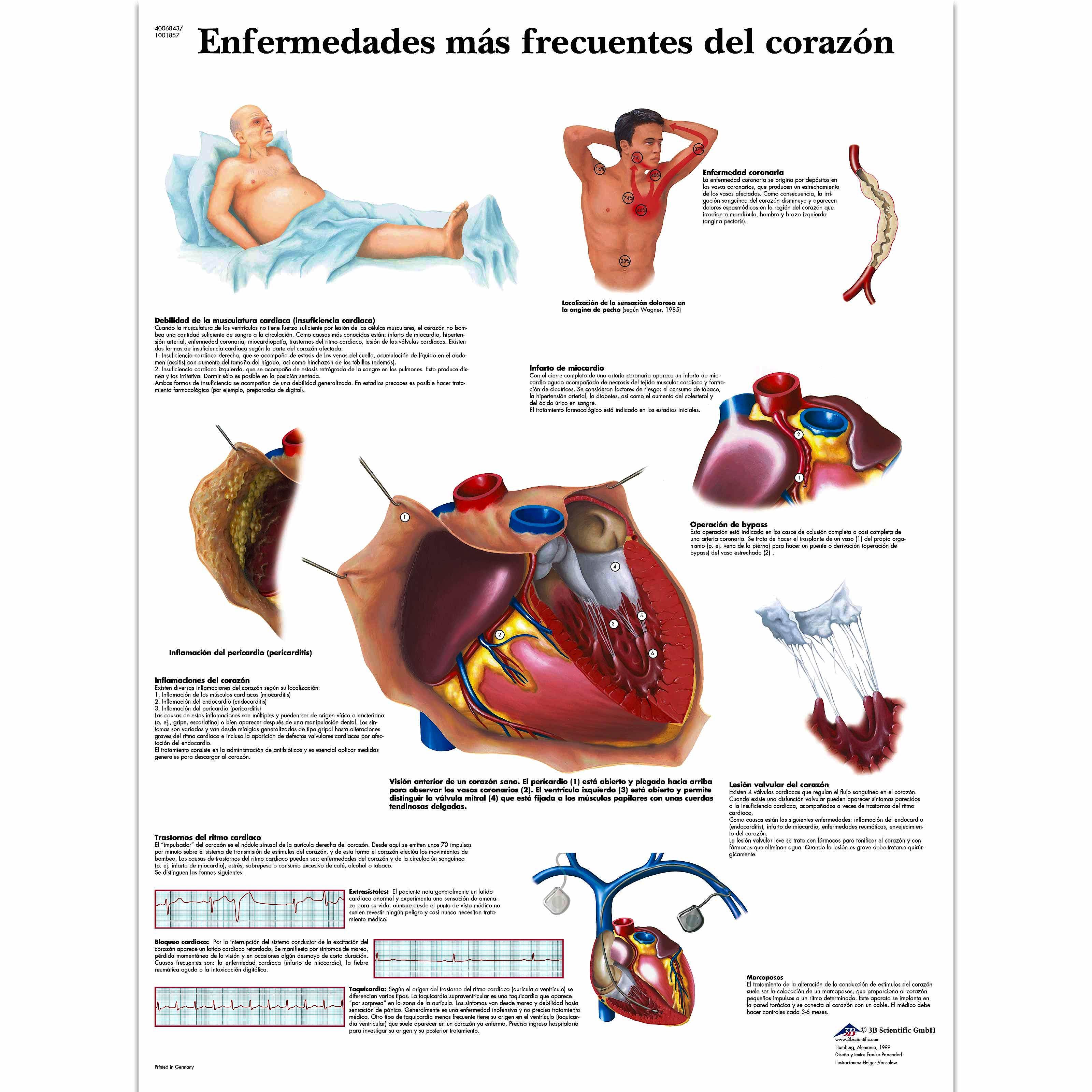 Lamina Enfermedades Frecuentes del Corazon (formato 50 x 67 cm)