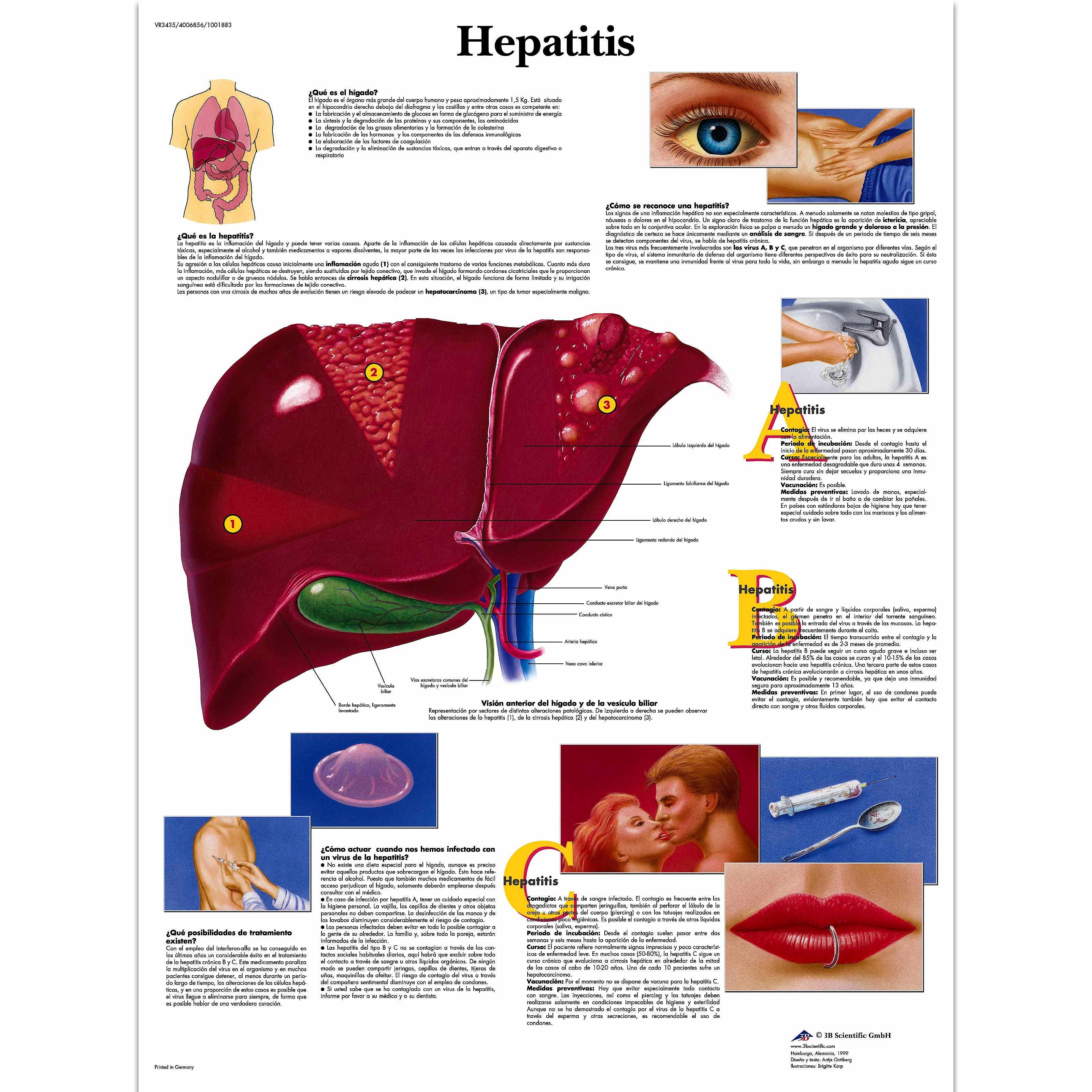 Lamina Hepatitis (formato 50 x 67 cm)