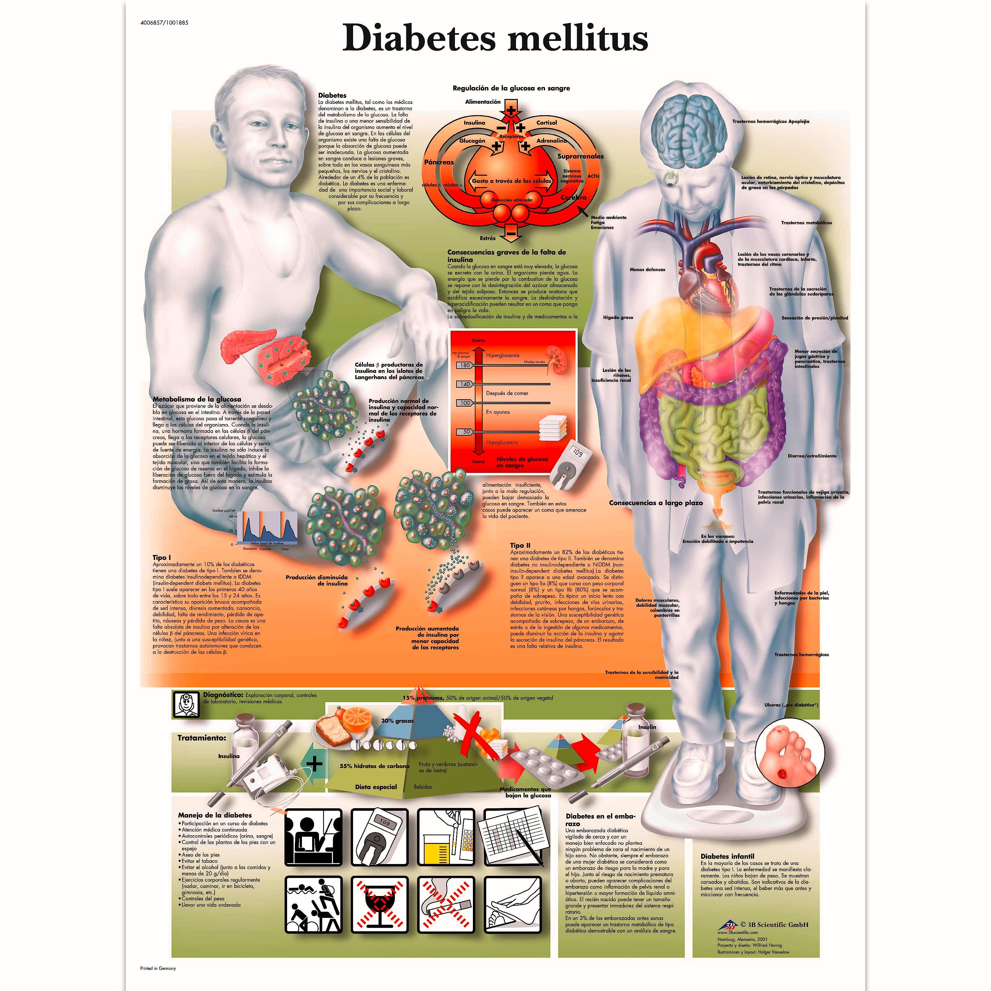 Lamina Diabetes Mellitus (formato 50 x 67 cm)