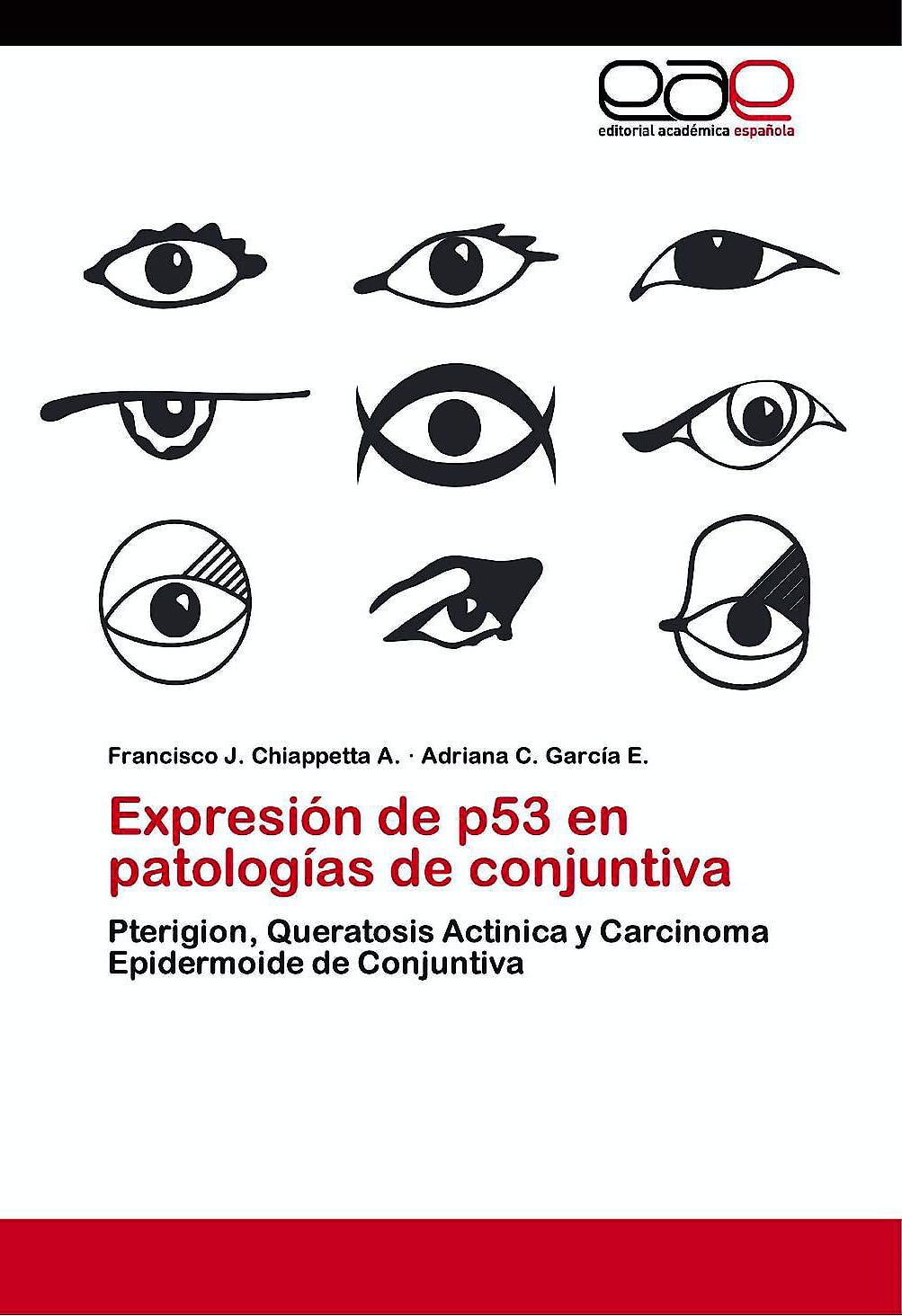 Portada del libro 9783847369646 Expresion de P53 en Patologías de Conjuntiva. Pterigion, Queratosis Actinica y Carcinoma Epidermoide de Conjuntiva