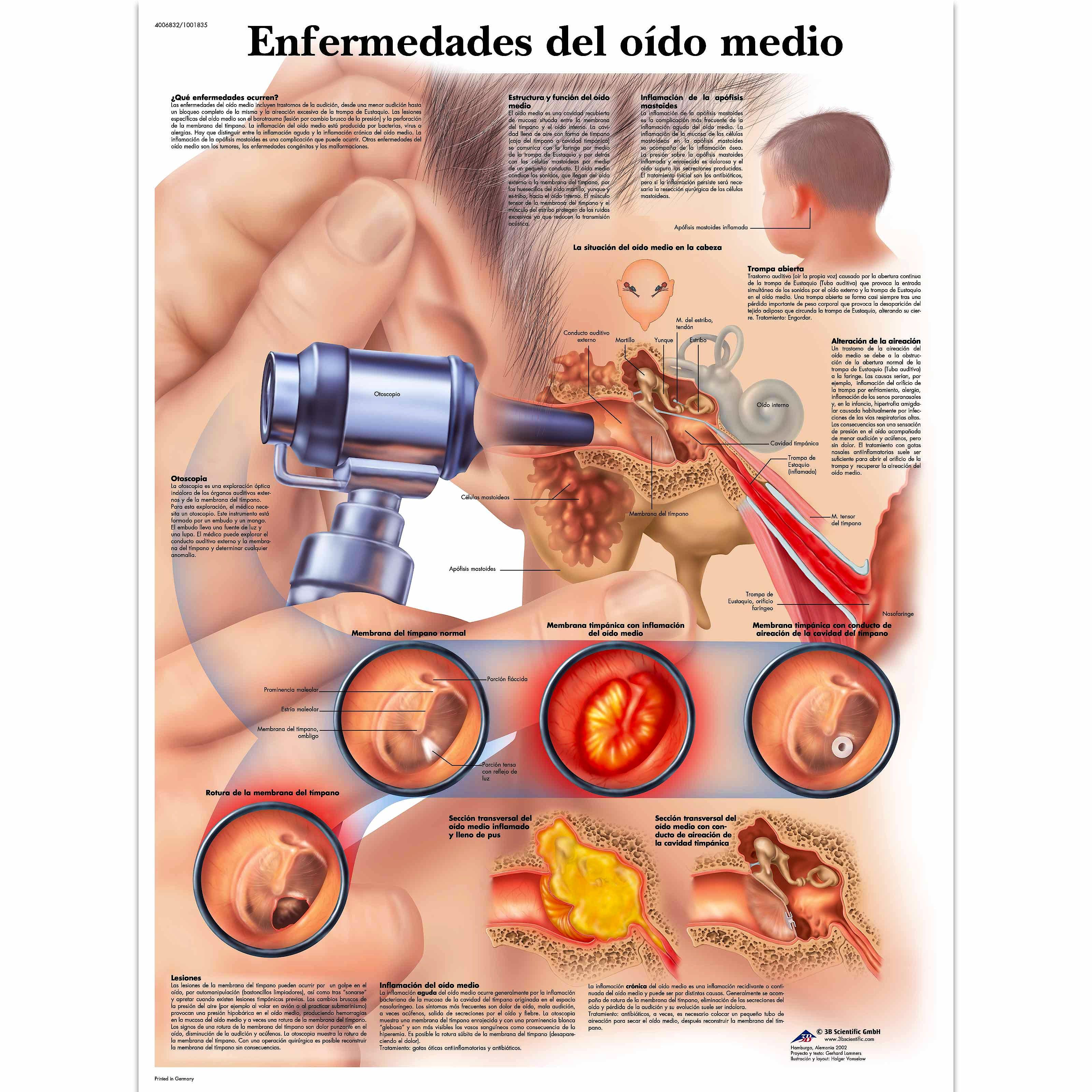 Lamina Enfermedades del Oido Medio (formato 50 x 67 cm)