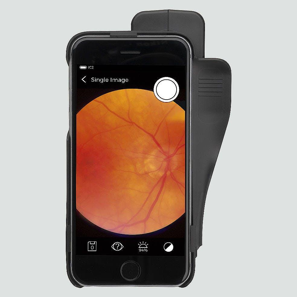 Funduscopio Heine IC2 Set/5 para Captura de Imágenes del Fondo del Ojo, C/carcasa-Adaptador para Iphone 5/5s