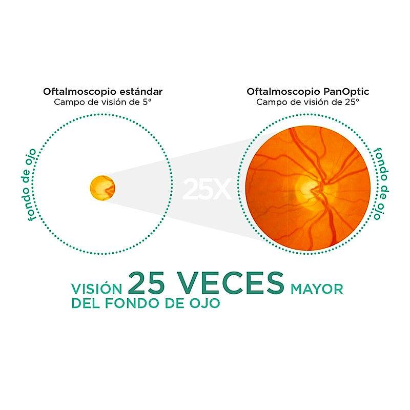 Oftalmoscopio Welch Allyn Panoptic Litio con Lente Corneal, Compuesto por Cabezal de Oftalmoscopio Panoptic + Mango de Litio Completo + Estuche