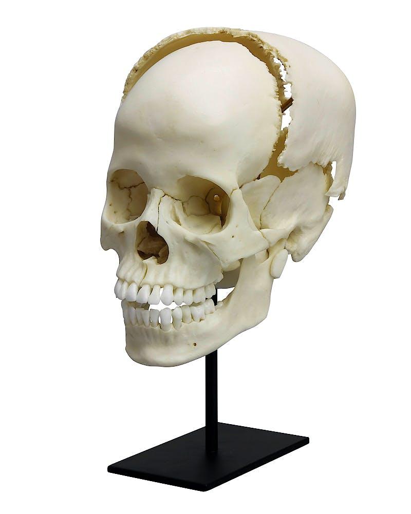 Cráneo Articulado de Estudio Médico Humano