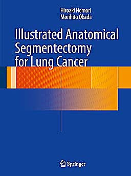 Portada del libro 9784431541431 Illustrated Anatomical Segmentectomy for Lung Cancer