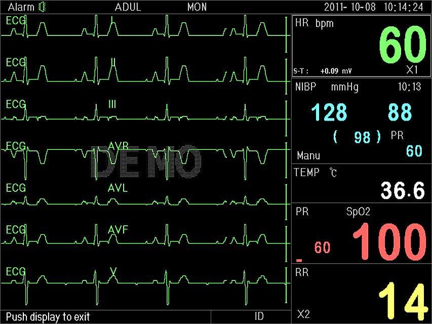 Monitor multiparamétrico P3000 Ecg+SpO2+FC+Nibp+Resp+Temp