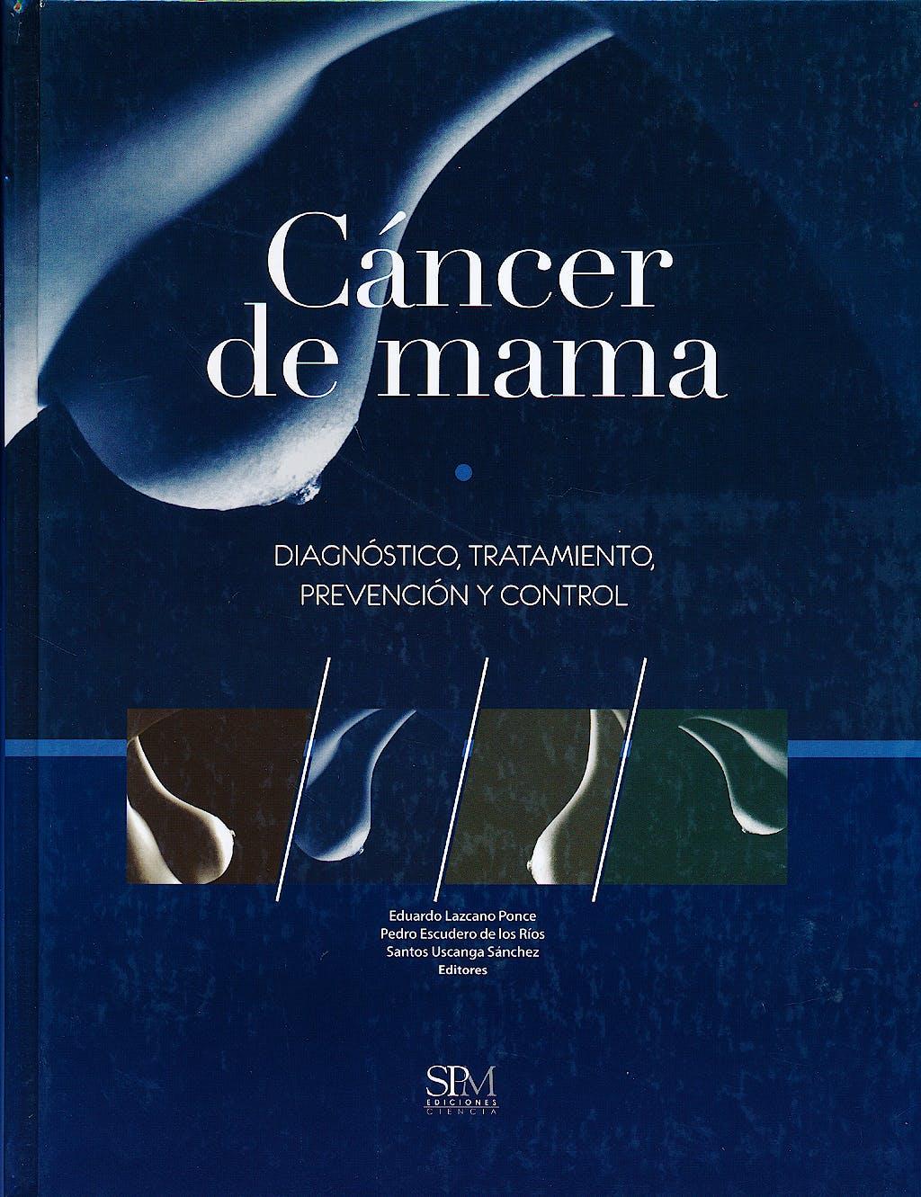 Portada del libro 9786075111339 Cancer de Mama. Diagnostico, Tratamiento, Prevencion y Control