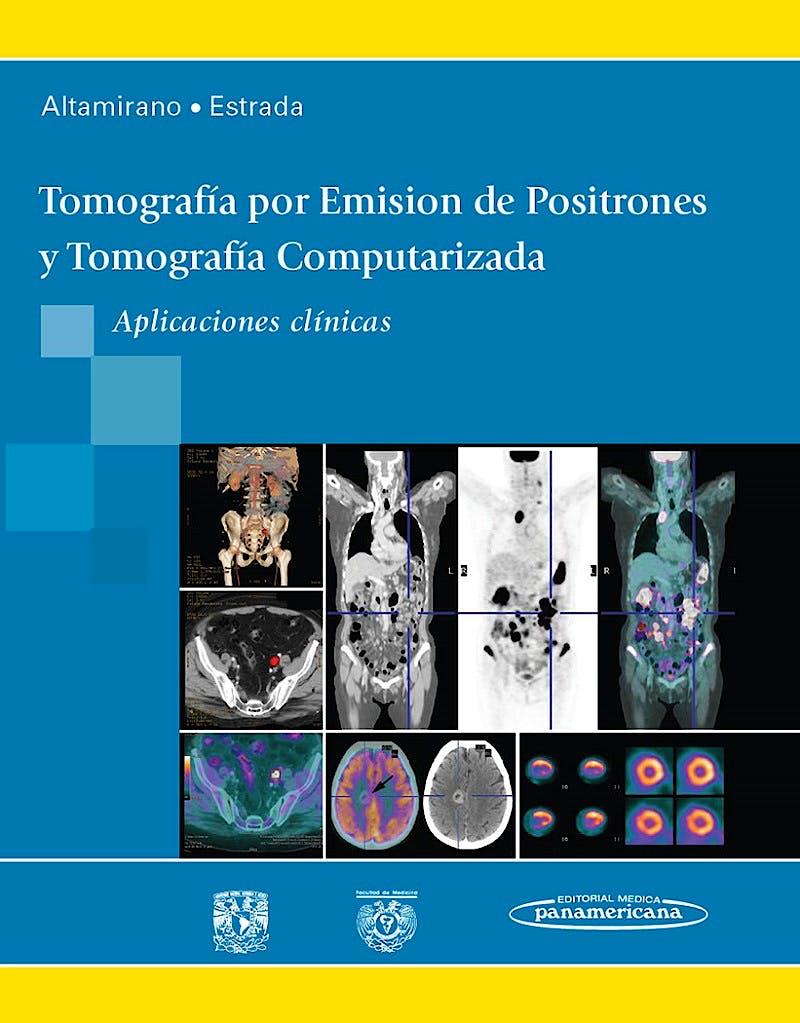 Portada del libro 9786077743996 Tomografía por Emisión de Positrones y Tomografía Computarizada. Aplicaciones Clínicas