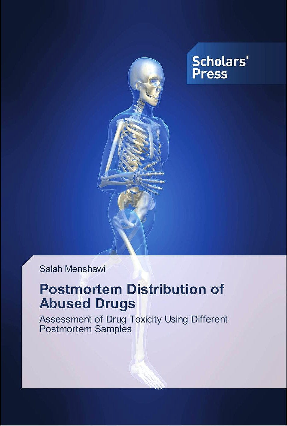 Portada del libro 9786202304160 Postmortem Distribution of Abused Drugs. Assessment of Drug Toxicity Using Different Postmortem Samples