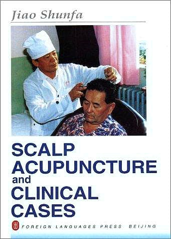 Portada del libro 9787119018065 Scalp Acupuncture and Clinical Cases
