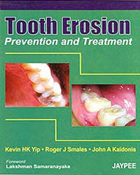 Portada del libro 9788180617515 Tooth Erosion. Prevention and Treatment