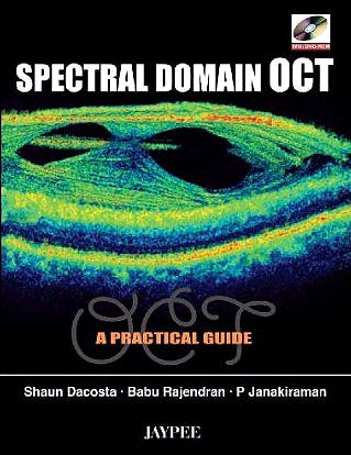 Portada del libro 9788184483116 Spectral Domain Oct. a Practical Guide + Dvd-Rom