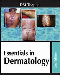 Portada del libro 9788184485585 Essentials in Dermatology