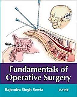 Portada del libro 9788184485738 Fundamentals of Operative Surgery