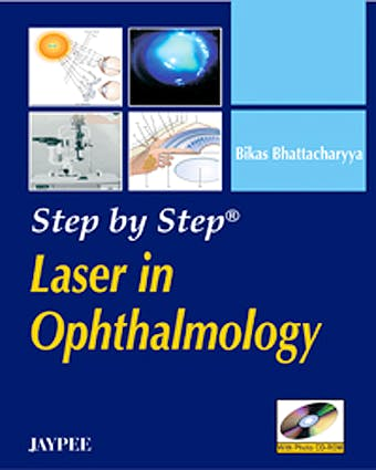 Portada del libro 9788184486070 Step by Step Laser in Ophthalmology + Cd-Rom