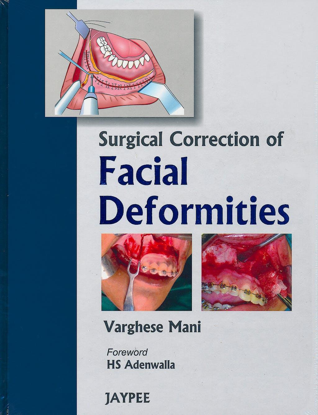 Portada del libro 9788184488791 Surgical Correction of Facial Deformities