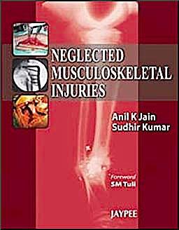 Portada del libro 9788184488890 Neglected Musculoskeletal Injuries