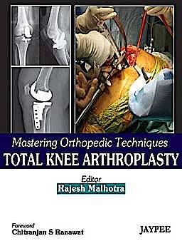 Portada del libro 9788184488944 Mastering Orthopedic Techniques. Total Knee Arthroplasty