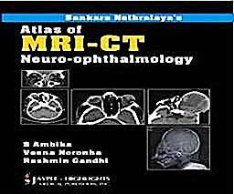 Portada del libro 9788184489002 Atlas of MRI-CT. Neuro-Ophthalmology
