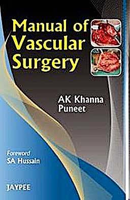 Portada del libro 9788184489279 Manual of Vascular Surgery