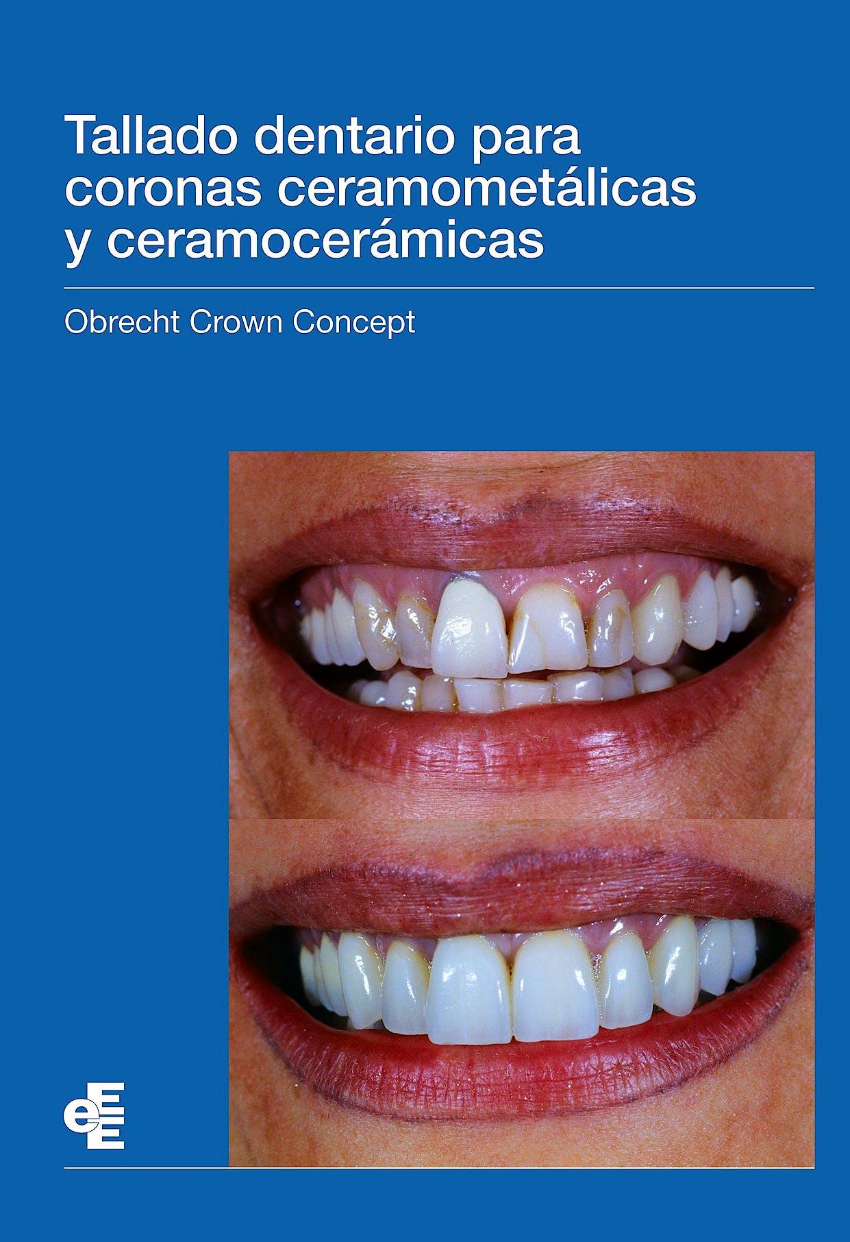 Portada del libro 9788412107869 Tallado Dentario para Coronas Ceramometálicas y Ceramocerámicas Obrecht Crown Concept
