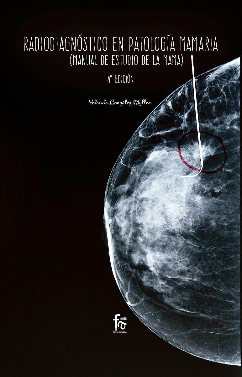 Portada del libro 9788413013091 Radiodiagnóstico en Patología Mamaria (Manual de Estudio de la Mama)