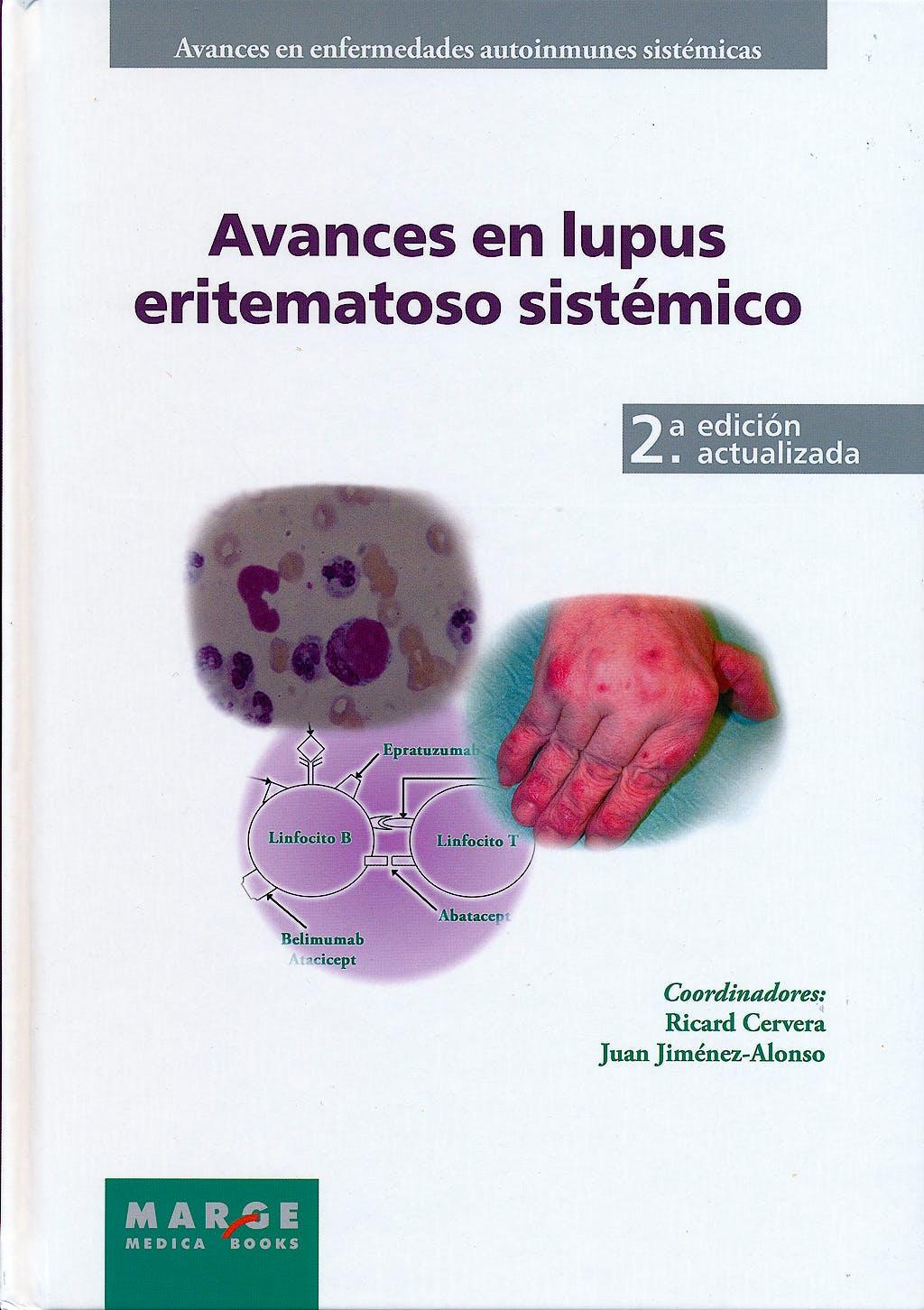Portada del libro 9788415340201 Avances en Lupus Eritematoso Sistémico (Avances en Enfermedades Autoinmunes Sistémicas, Vol. 1)
