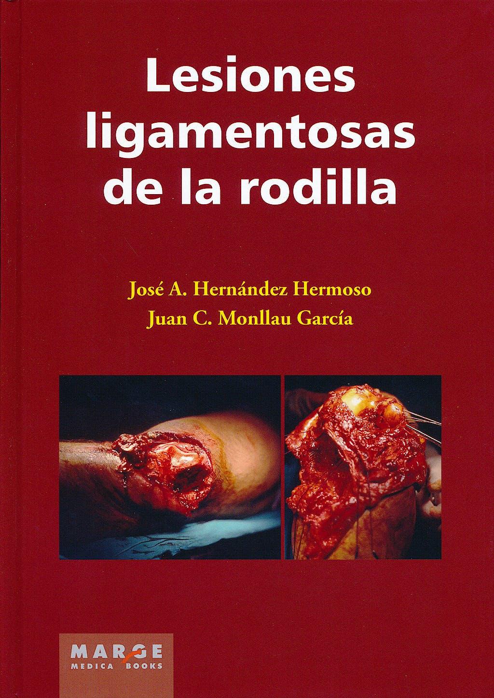 Portada del libro 9788415340263 Lesiones Ligamentosas de la Rodilla