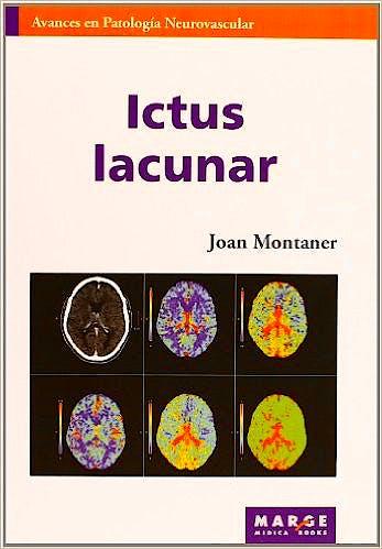 Portada del libro 9788415340393 Ictus Lacunar