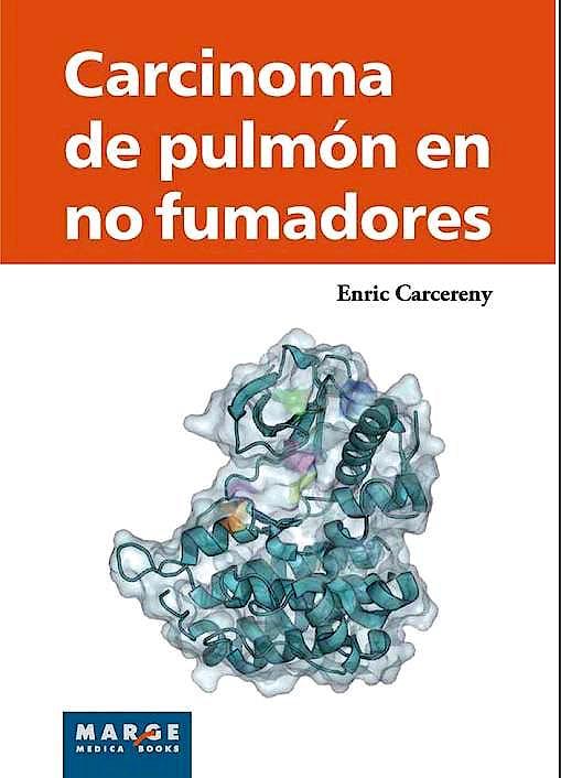 Portada del libro 9788415340706 Carcinoma de Pulmon en no Fumadores