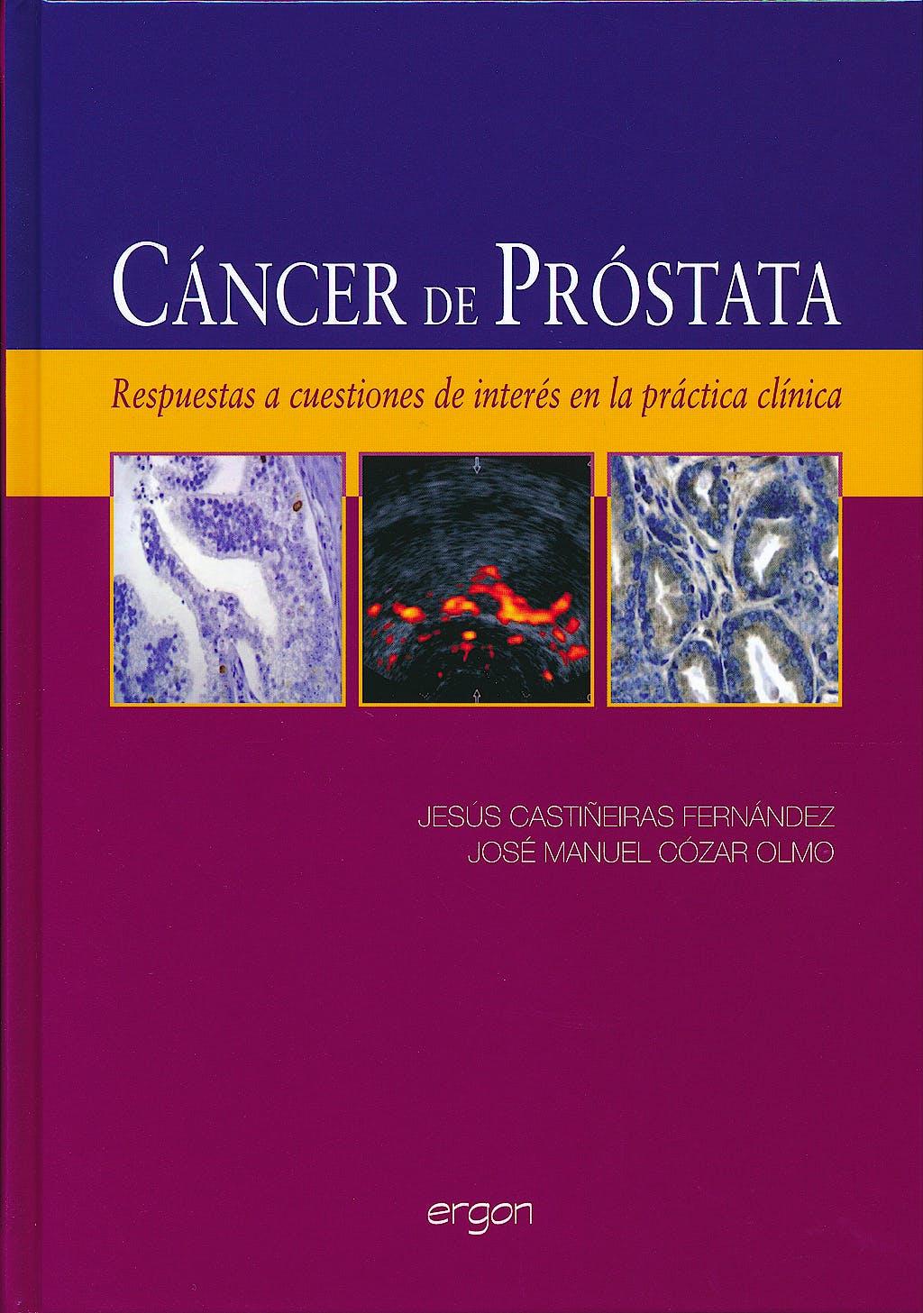Portada del libro 9788415351375 Cáncer de Próstata. Respuestas a Cuestiones de Interés en la Práctica Clínica