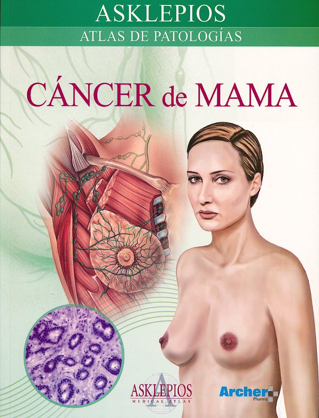 Portada del libro 9788415351450 Cancer de Mama. Atlas de Patologia (Asklepios)