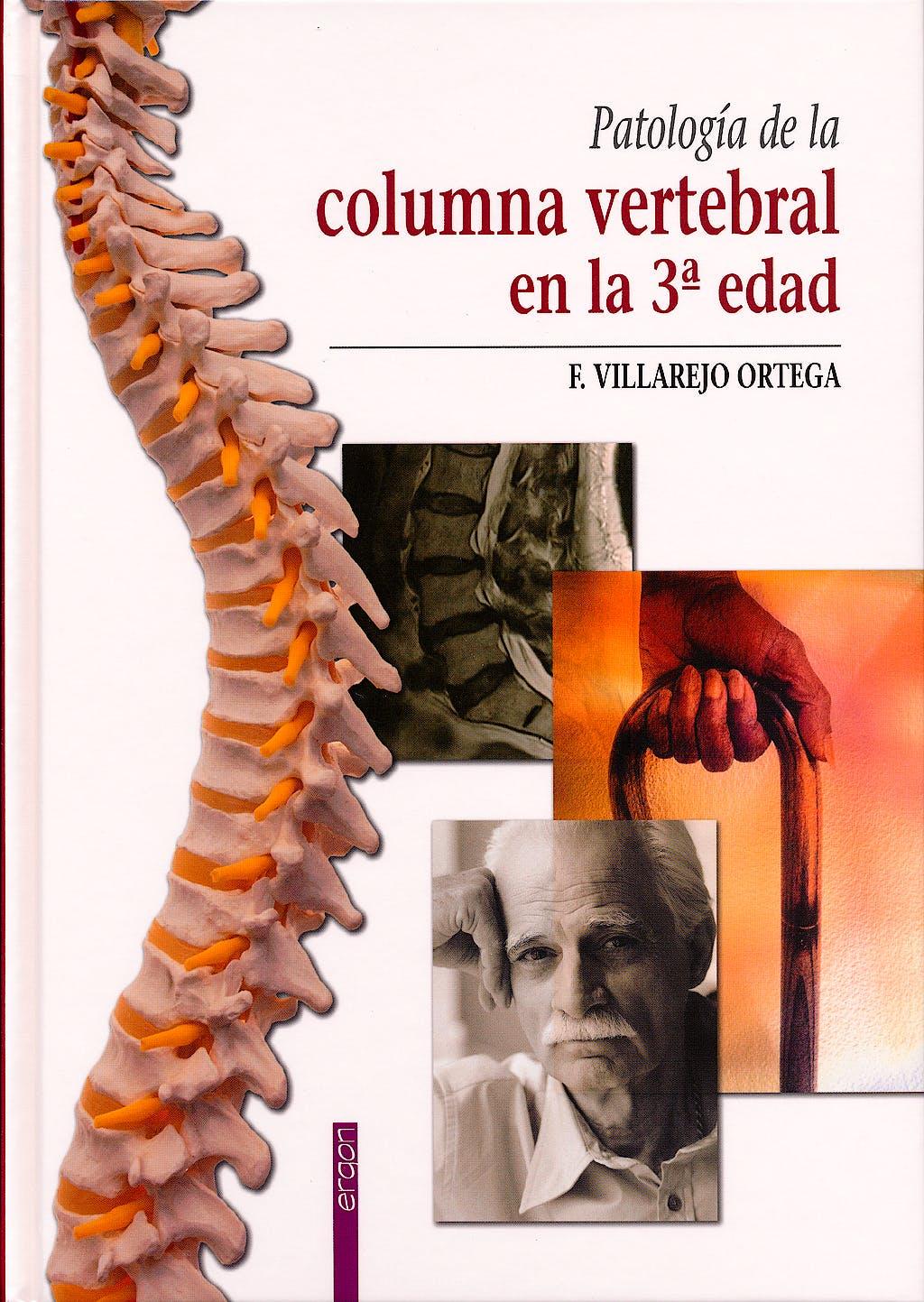 Portada del libro 9788415351474 Patología de la Columna Vertebral en la 3ª Edad