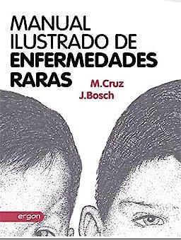 Portada del libro 9788415351993 Manual Ilustrado de Enfermedades Raras