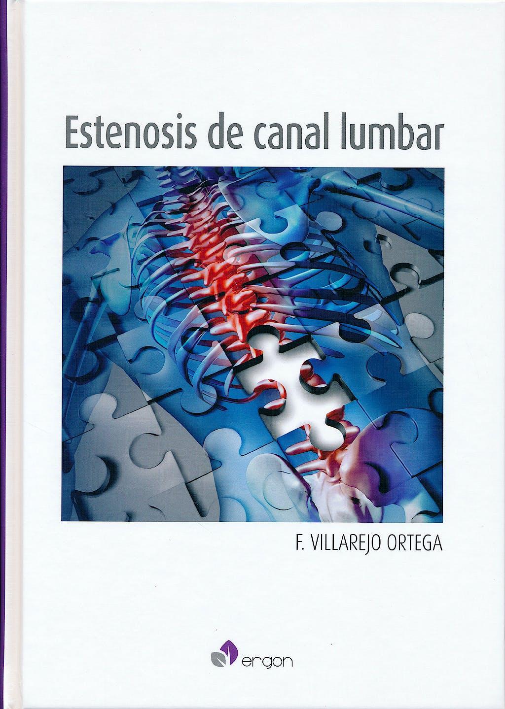 Portada del libro 9788415950752 Estenosis de Canal Lumbar