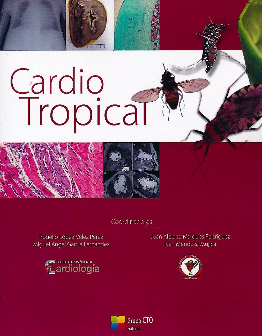 Portada del libro 9788416153855 Cardio Tropical