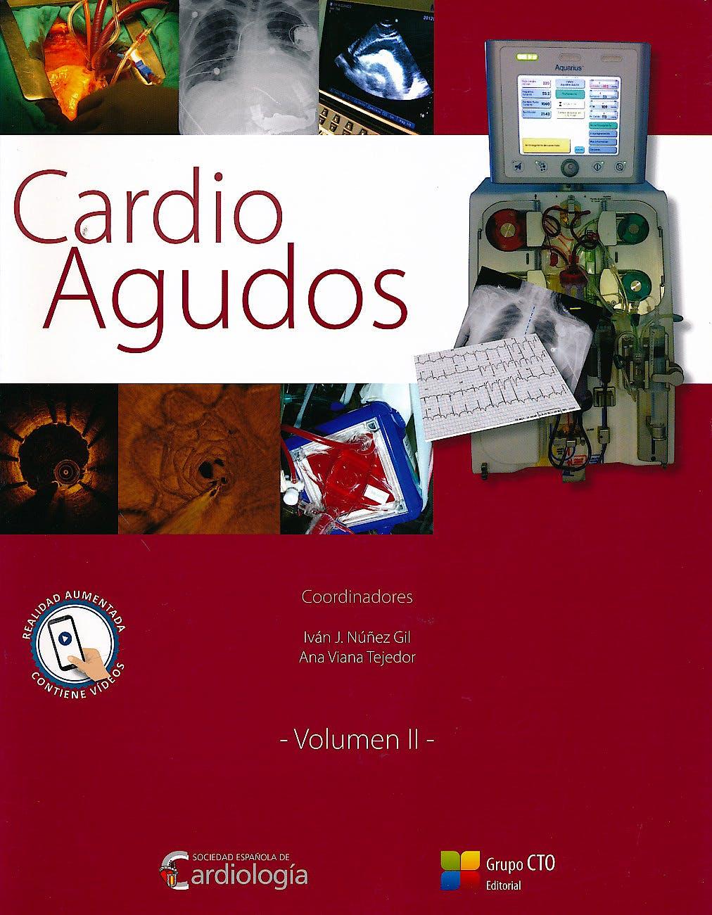 Portada del libro 9788416153992 Cardio Agudos, Vol. II