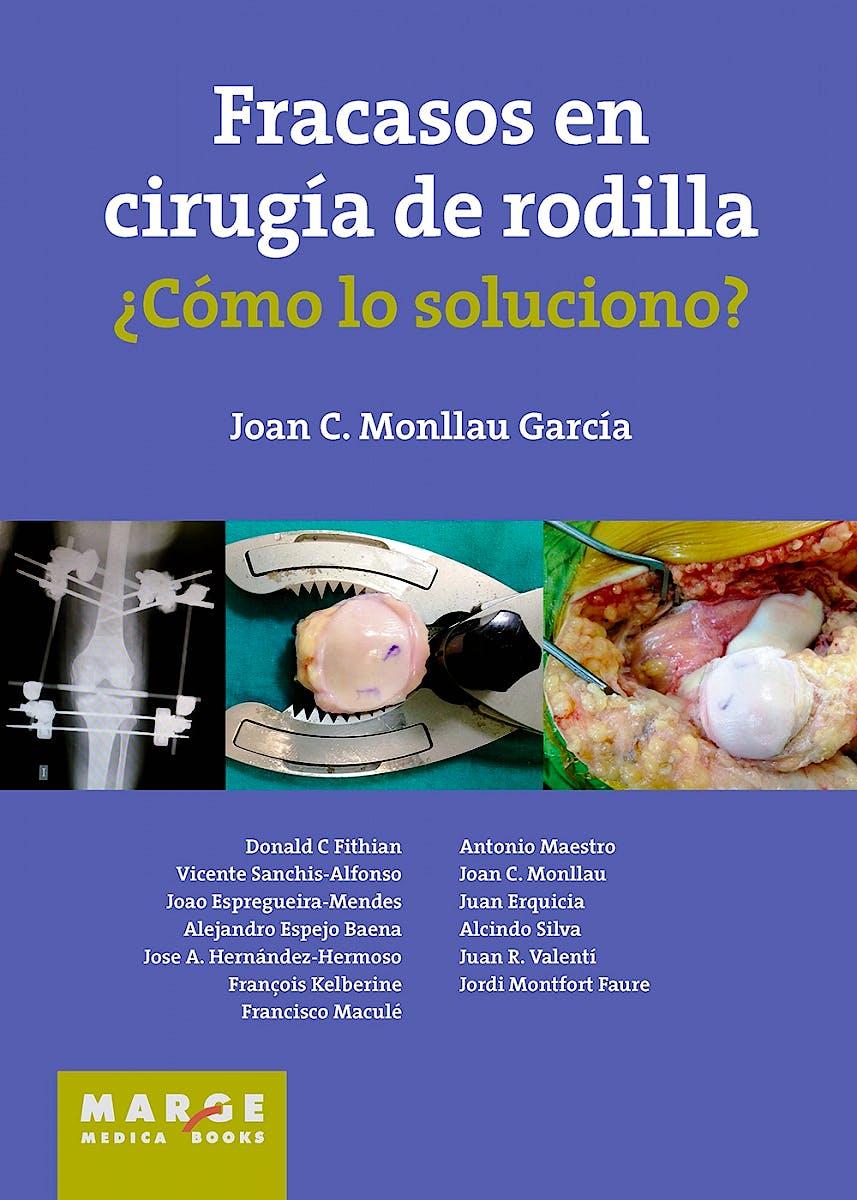 Portada del libro 9788416171118 Fracasos en Cirugía de Rodilla ¿Cómo lo Soluciono?