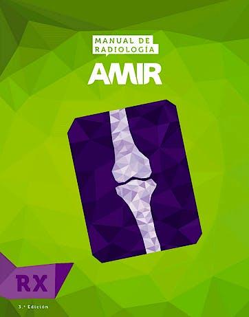 Portada del libro 9788416218226 Manual de Radiología AMIR