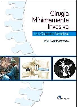 Portada del libro 9788416270651 Cirugía Mínimamente Invasiva de la Columna Vertebral