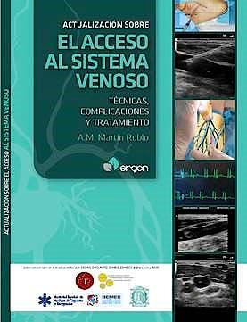 Portada del libro 9788416270798 Actualización sobre el Acceso al Sistema Venoso. Técnicas, Complicaciones y Tratamiento