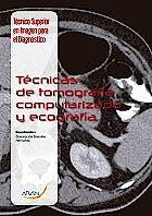 Portada del libro 9788416293179 Tecnicas de Tomografia Computarizada y Ecografia (Tecnico Superior en Imagen para el Diagnostico Modulo 7)